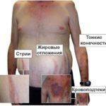 Что такое синдром Кушинга и как его лечить?