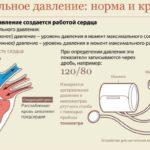 Гипертония 1, 2 и 3 степени — методы лечения