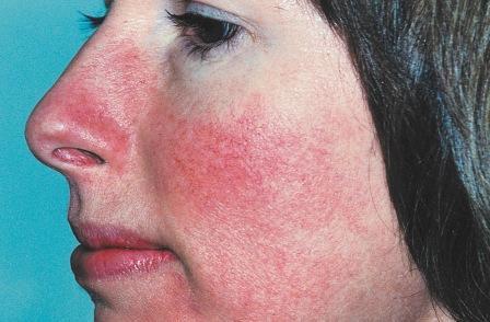 Покраснение щек и распирания в висках свидетельствуют о высоком артериальном давлении