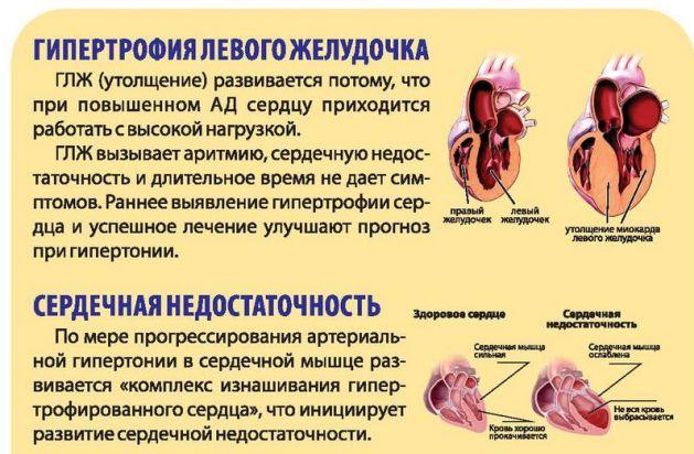 Последствия от гипертонии