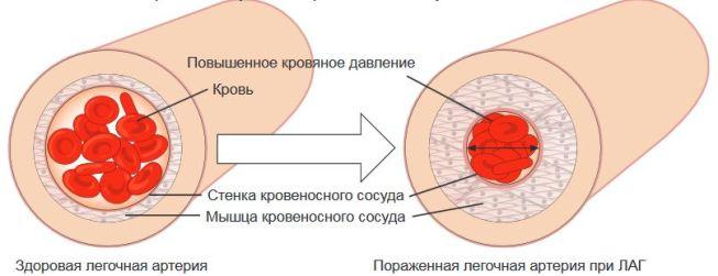 фото легочная гипертензия