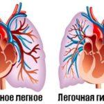 Профилактика и лечение легочной гипертензии