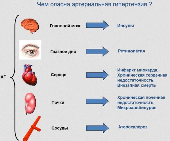 Чем опасно гипертония и высокое давление?