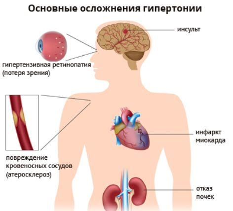осложнение гипертонии