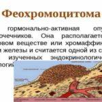 Феохромоцитома: симптомы, диагностика и лечение