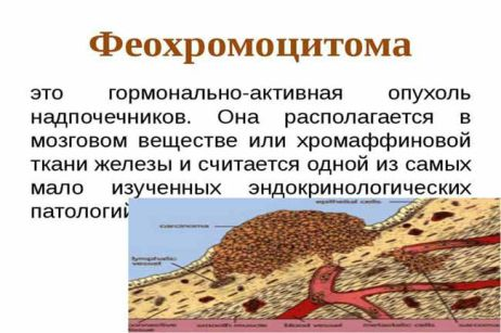 Что такое феохромоцитома?