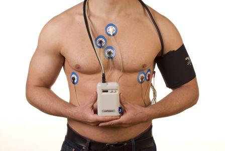 Исследование СМАД - суточный мониторинг артериального давления