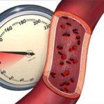 В каких единицах измеряют артериальное давление?
