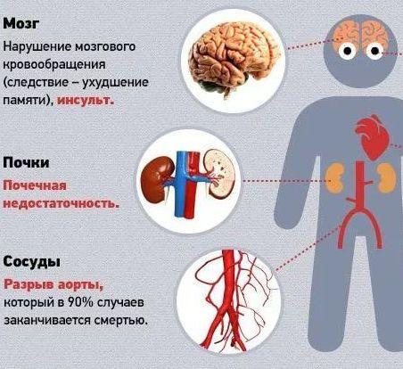 осложнение от гипертонии и давления