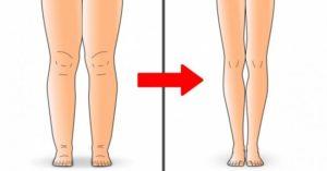Отеки ног при высоком давлении