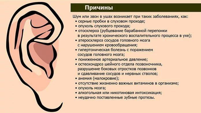 Причины шума в ухе