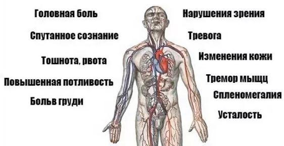 Основные симптомы гипертонии у мужчин