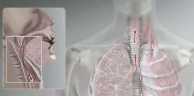 Острые приступы кашля