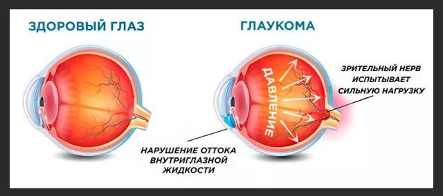 глаукома болят глаза