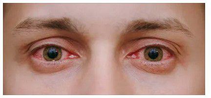 симптомы красные глаза